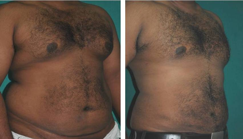 Mega liposuction in Kerala result